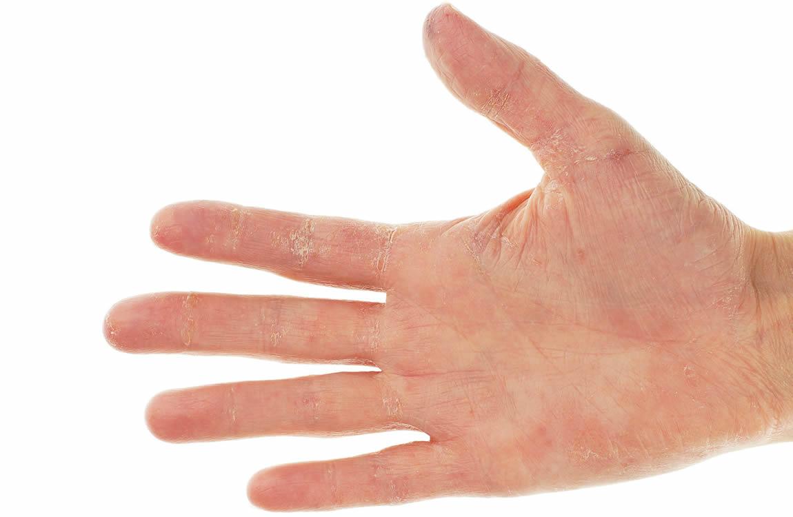 Zonder waterontkalker : een harde huid